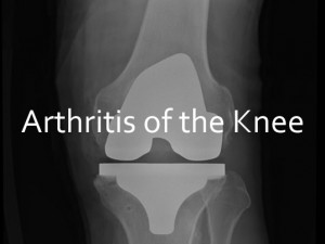 Arthritis in Knee